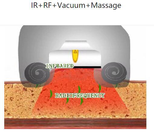 Неинвазивный RF + Инфракрасный свет Контур тела
